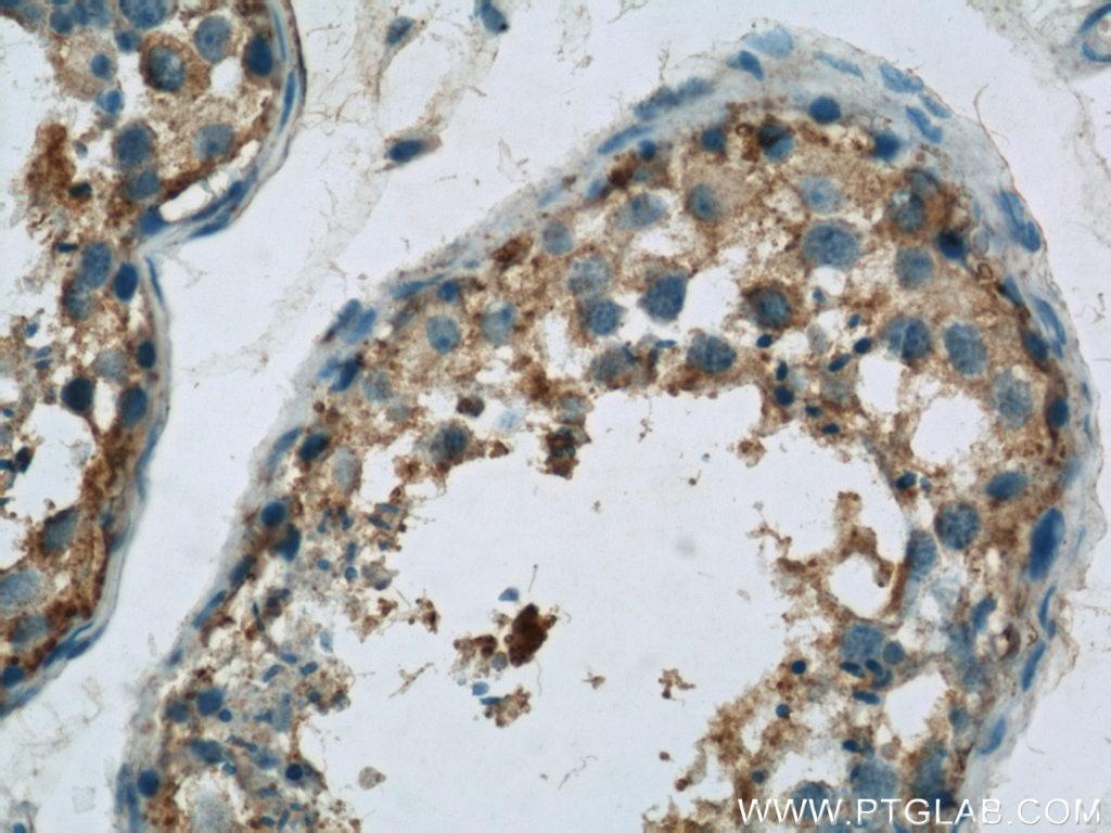 Osteocalcin Antibody in Immunohistochemistry (Paraffin) (IHC (P))