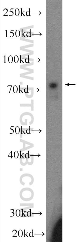 Ubiquilin 1 Antibody in Western Blot (WB)