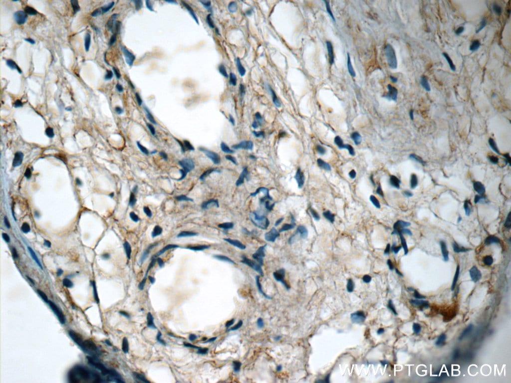 NFKB1 Antibody in Immunohistochemistry (Paraffin) (IHC (P))
