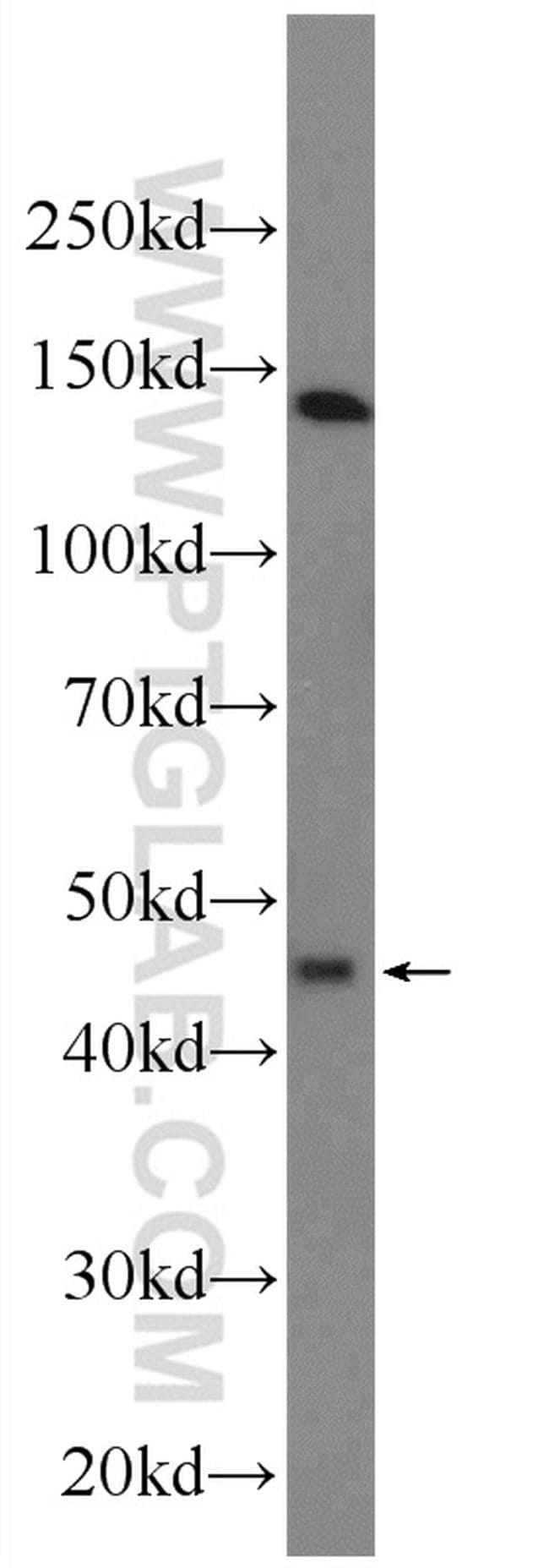 KCNK18 Antibody in Western Blot (WB)