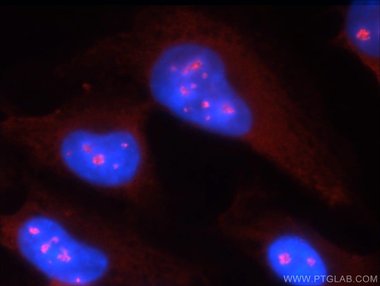 RSK2 Antibody in Immunofluorescence (IF)