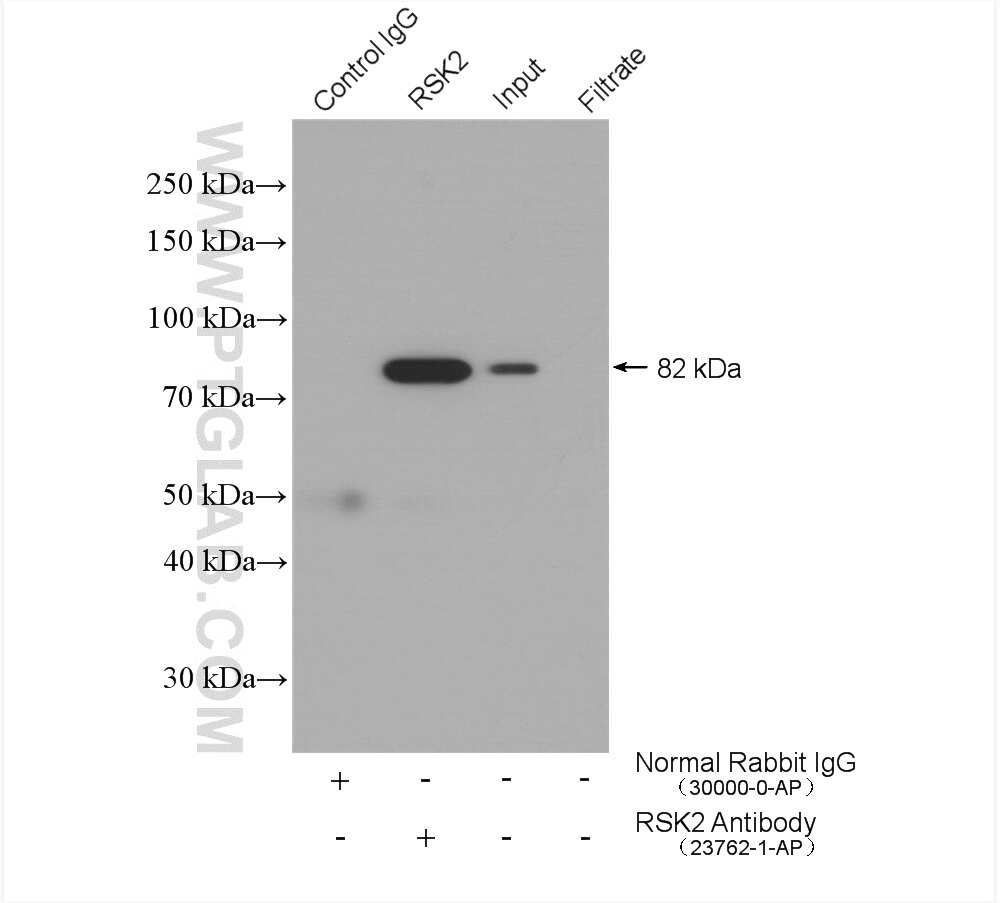 RSK2 Antibody in Immunoprecipitation (IP)