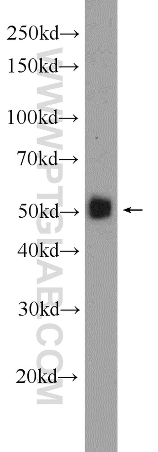 Angiotensinogen Antibody in Western Blot (WB)