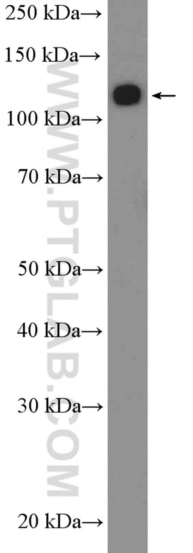 ANKRD27 Antibody in Western Blot (WB)