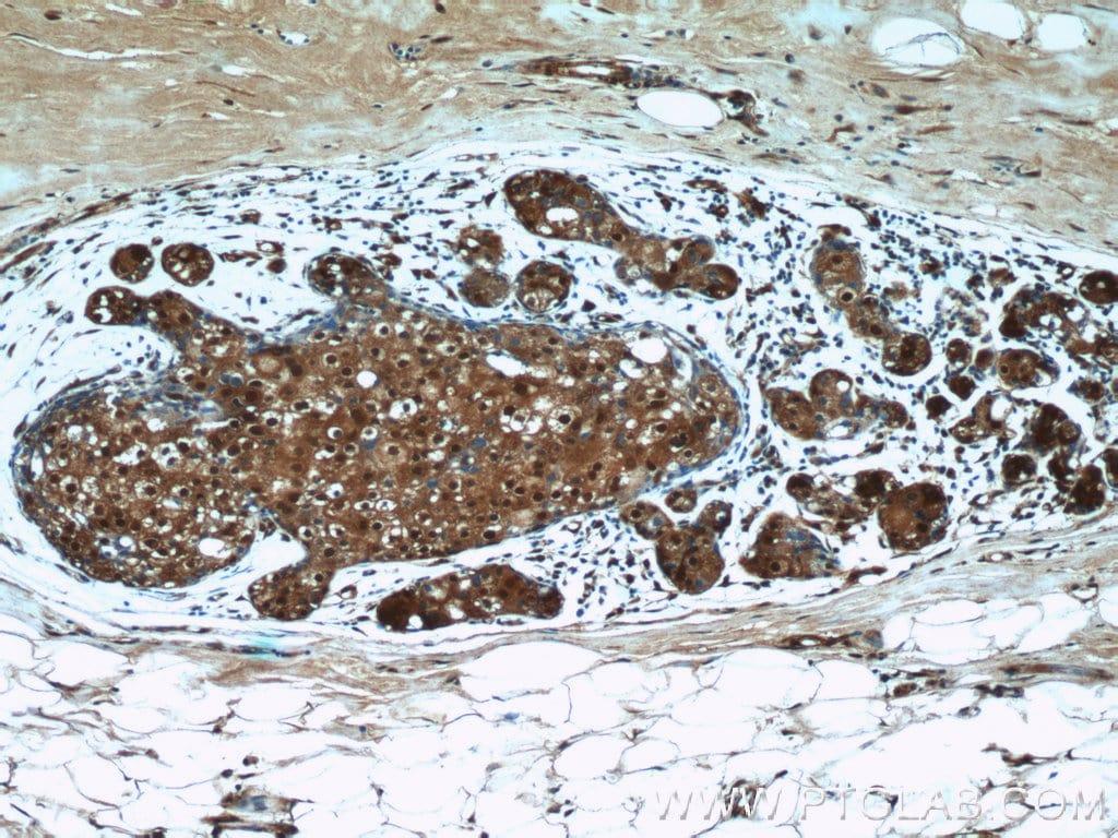 ANKS3 Antibody in Immunohistochemistry (Paraffin) (IHC (P))