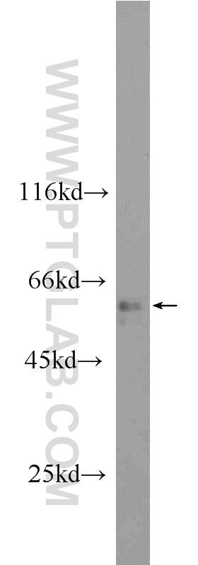 ANKS3 Antibody in Western Blot (WB)