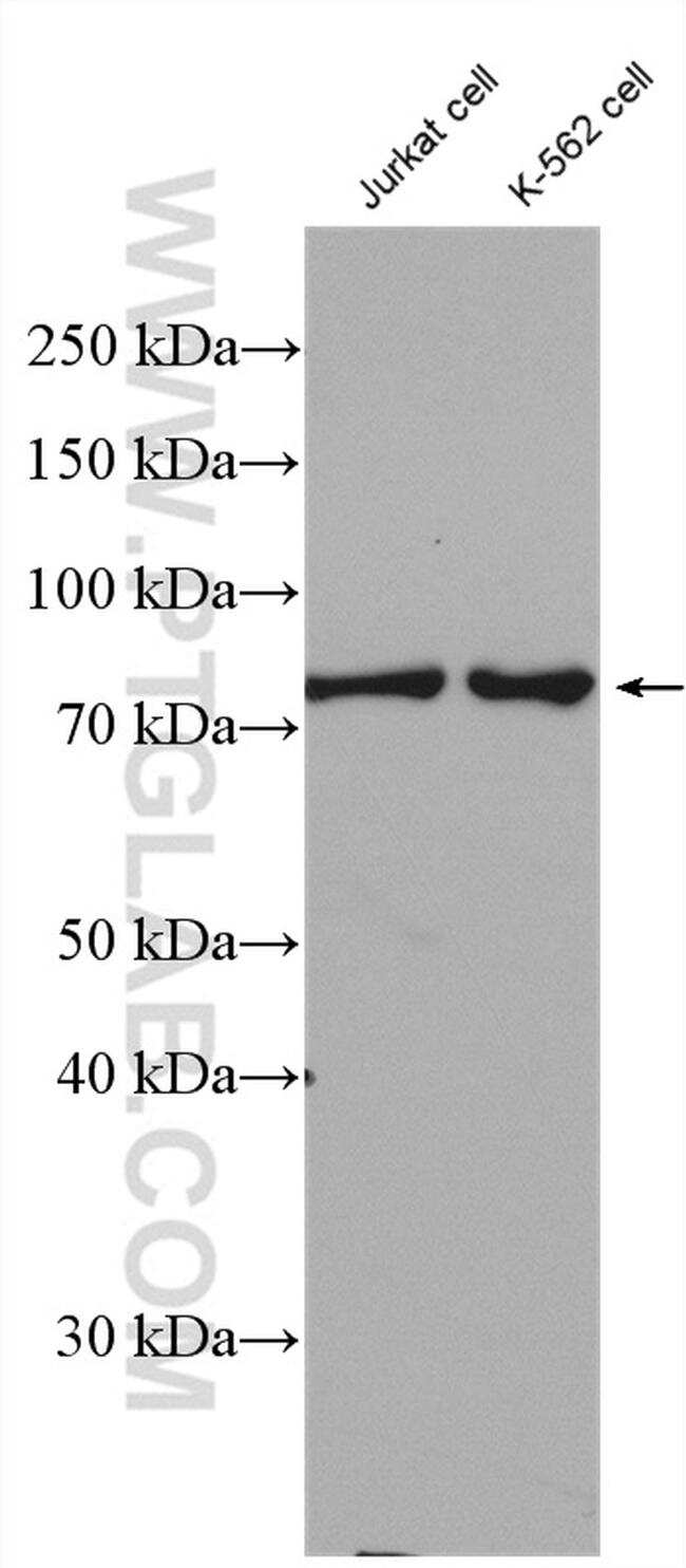 Cd2ap Antibody in Western Blot (WB)