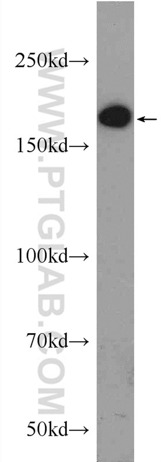 ERCC6/CSB Antibody in Western Blot (WB)