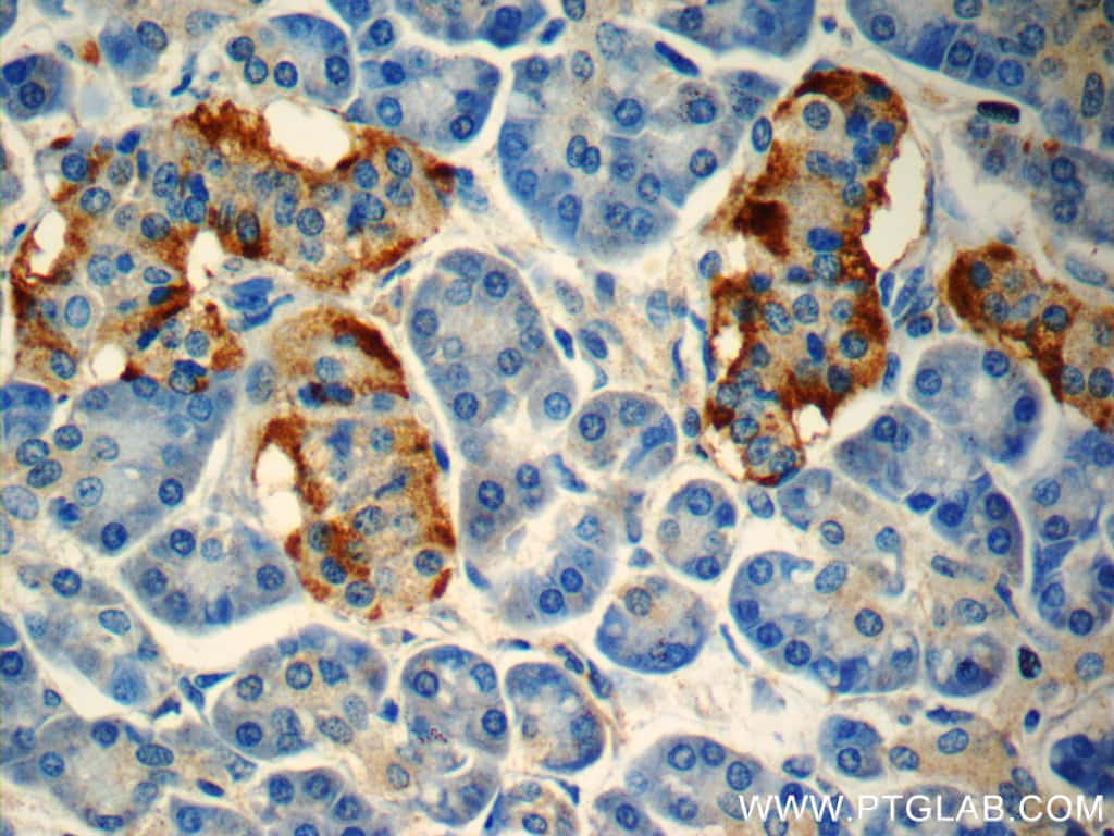 peptide YY Antibody in Immunohistochemistry (Paraffin) (IHC (P))
