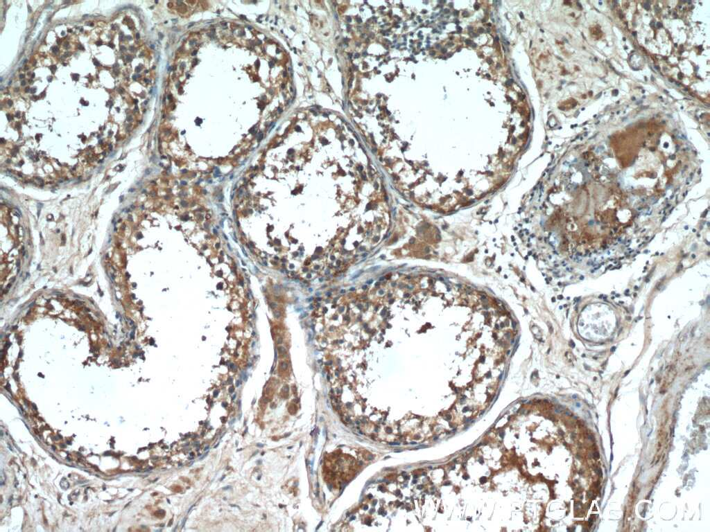 cIAP2 Antibody in Immunohistochemistry (Paraffin) (IHC (P))