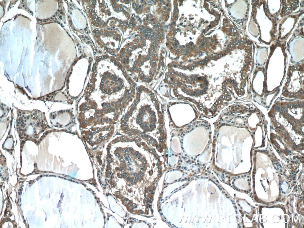 Sodium Iodide Symporter Antibody in Immunohistochemistry (Paraffin) (IHC (P))
