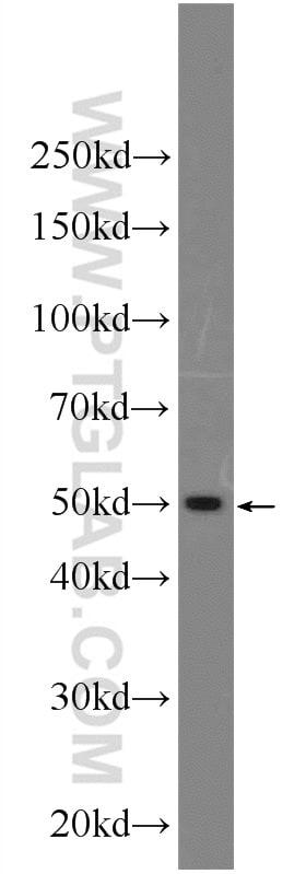 Sodium Iodide Symporter Antibody in Western Blot (WB)