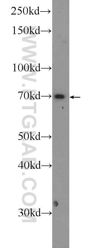 GPATCH2 Antibody in Western Blot (WB)