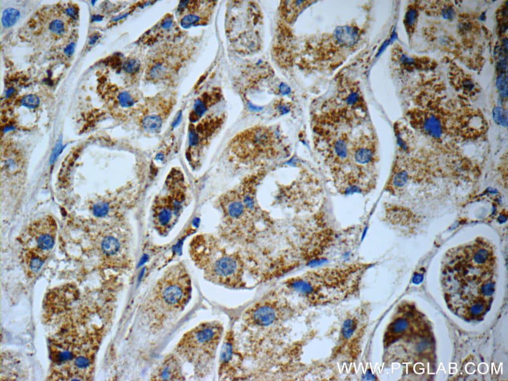 C1QBP Antibody in Immunohistochemistry (Paraffin) (IHC (P))