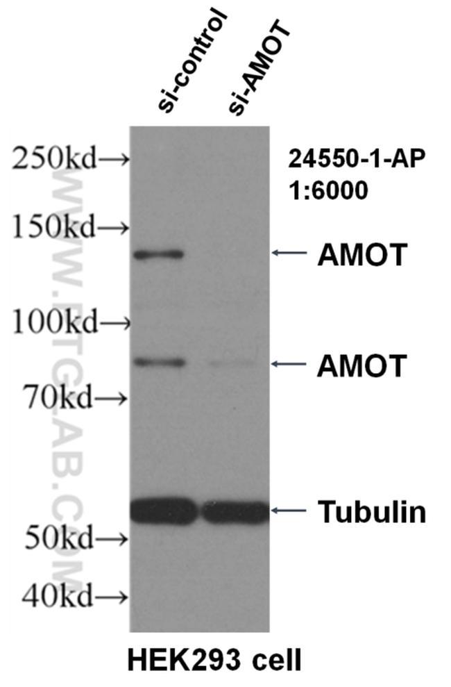 AMOT Antibody in Western Blot (WB)
