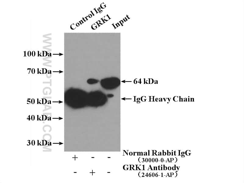 GRK1 Antibody in Immunoprecipitation (IP)
