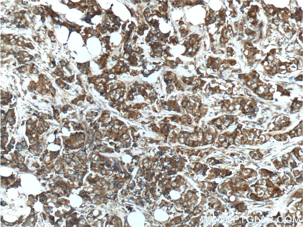 Angiopoietin 2 Antibody in Immunohistochemistry (Paraffin) (IHC (P))
