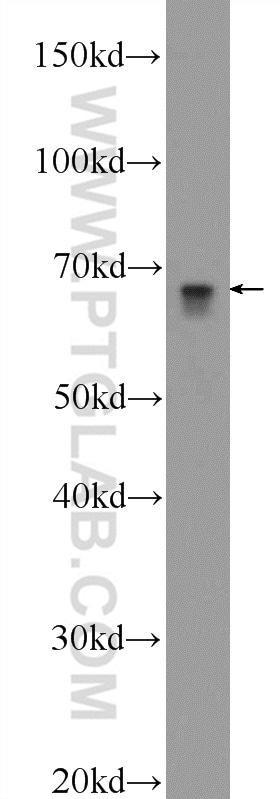 Angiopoietin 2 Antibody in Western Blot (WB)