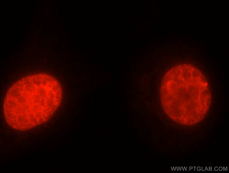 TOP2A Antibody in Immunofluorescence (IF)