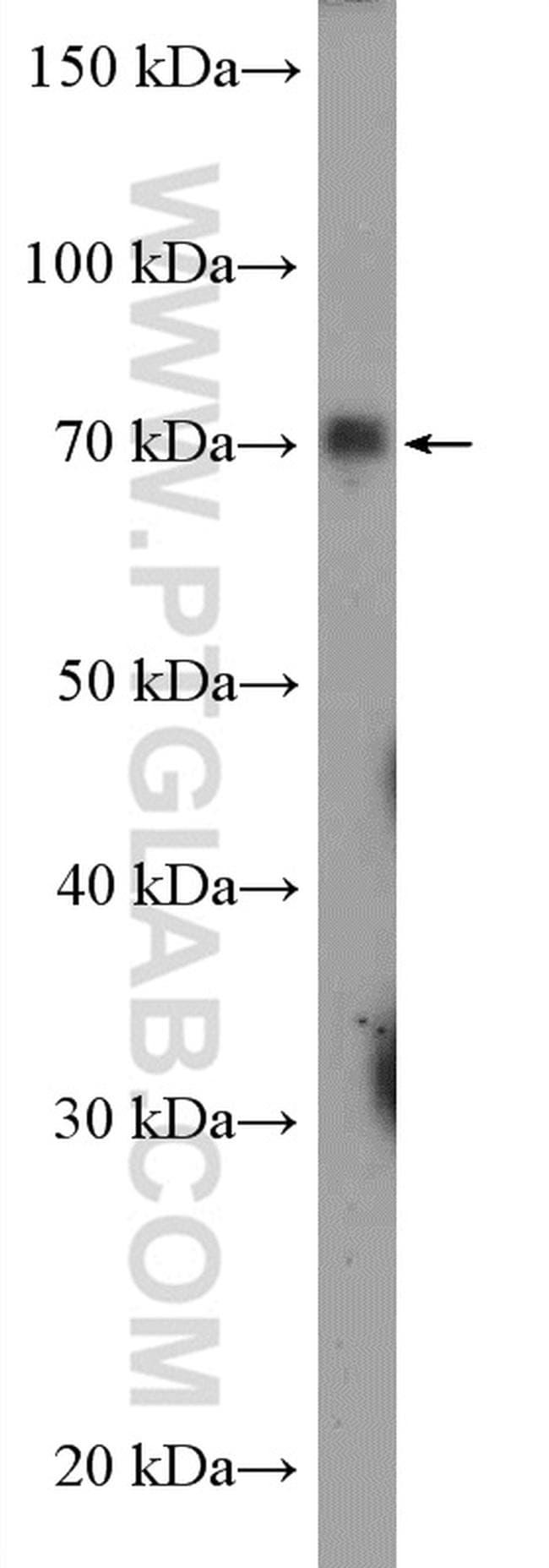 SGLT2 Antibody in Western Blot (WB)