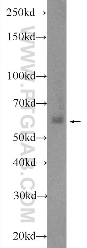 EHD1 Antibody in Western Blot (WB)