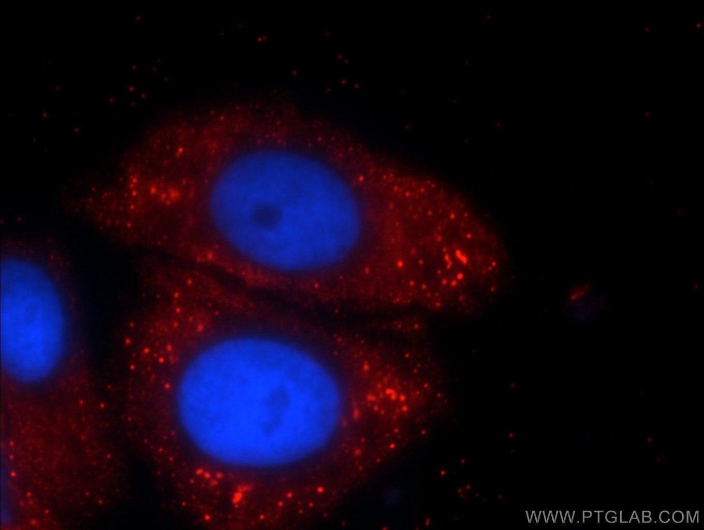 C5orf26 Antibody in Immunocytochemistry (ICC/IF)