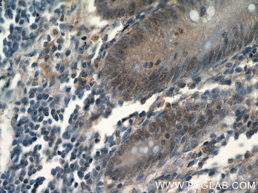 MDC1 Antibody in Immunohistochemistry (Paraffin) (IHC (P))