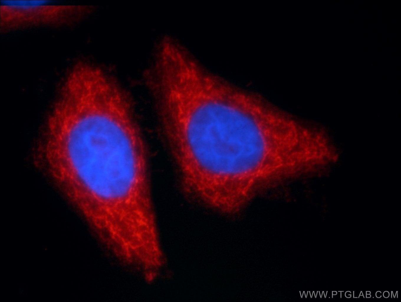 ANKS1B Antibody in Immunofluorescence (IF)