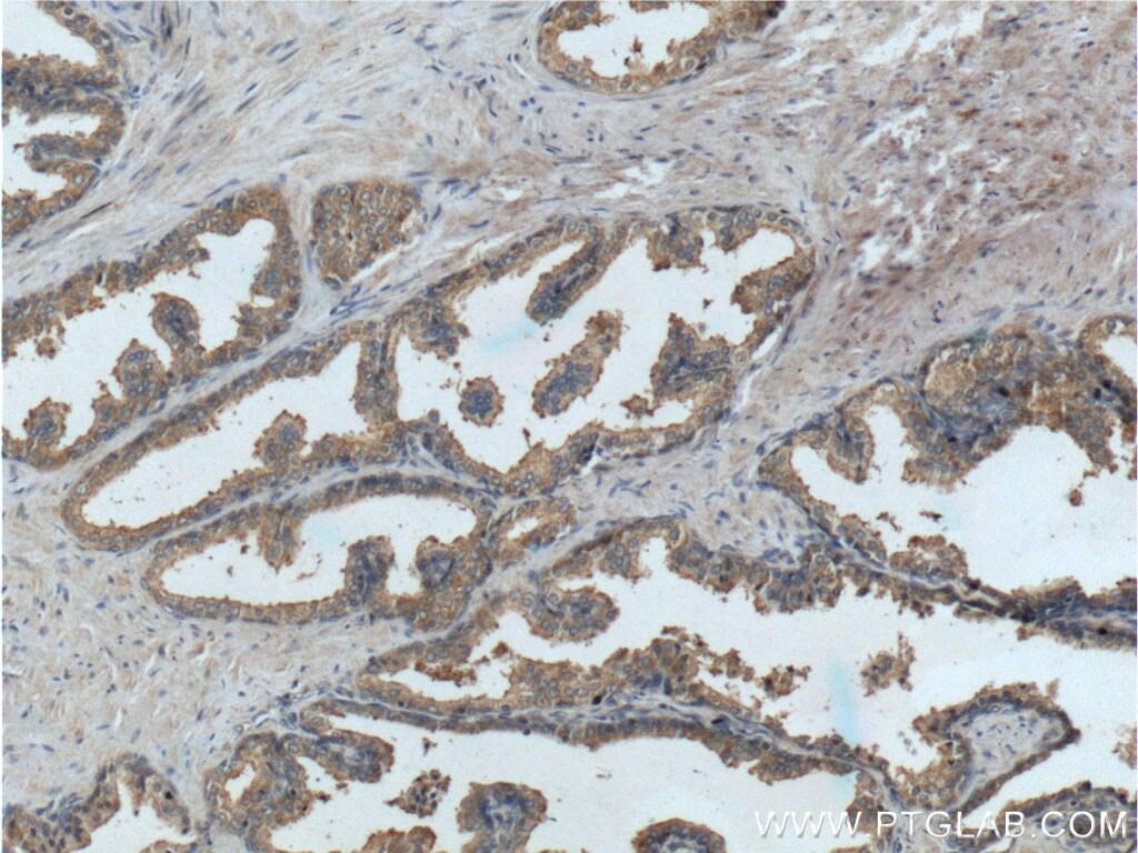 PTGER4 Antibody in Immunohistochemistry (Paraffin) (IHC (P))