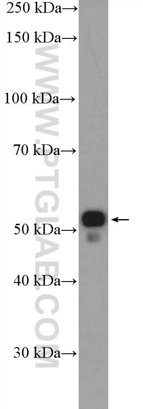 PTGER4 Antibody in Western Blot (WB)