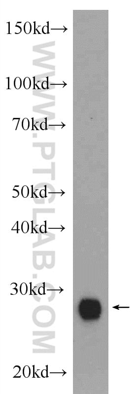 CTRB1 Antibody in Western Blot (WB)