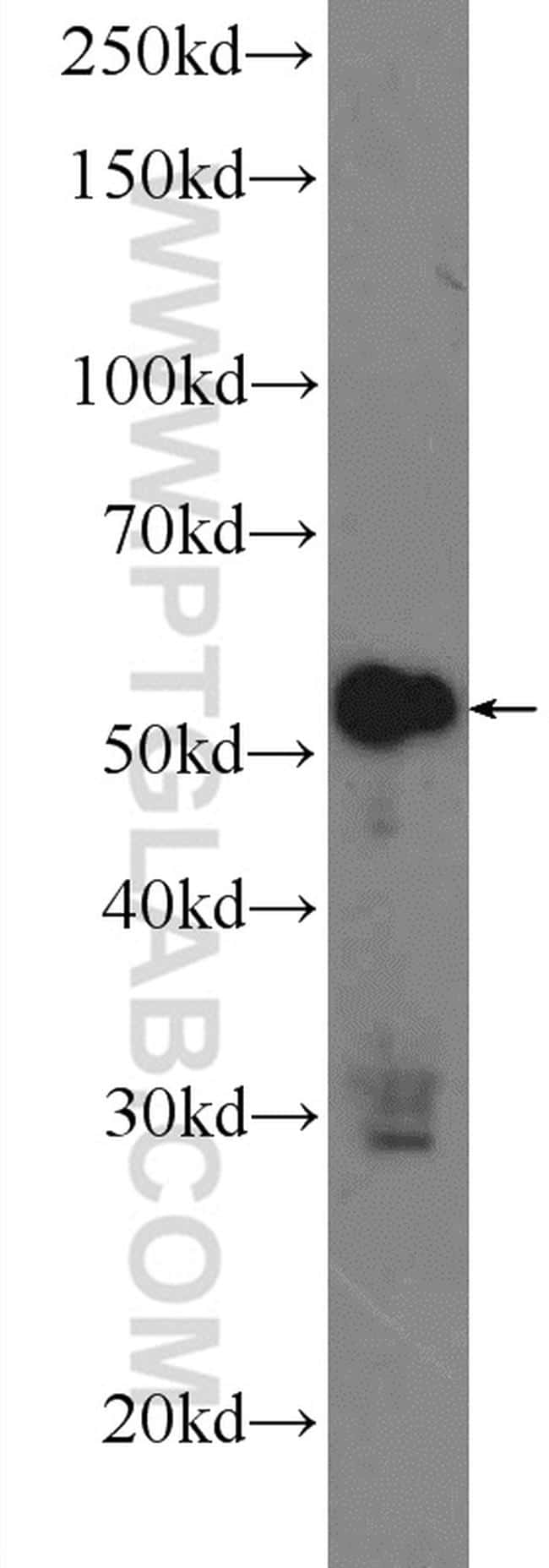 ZC3H12D Antibody in Western Blot (WB)