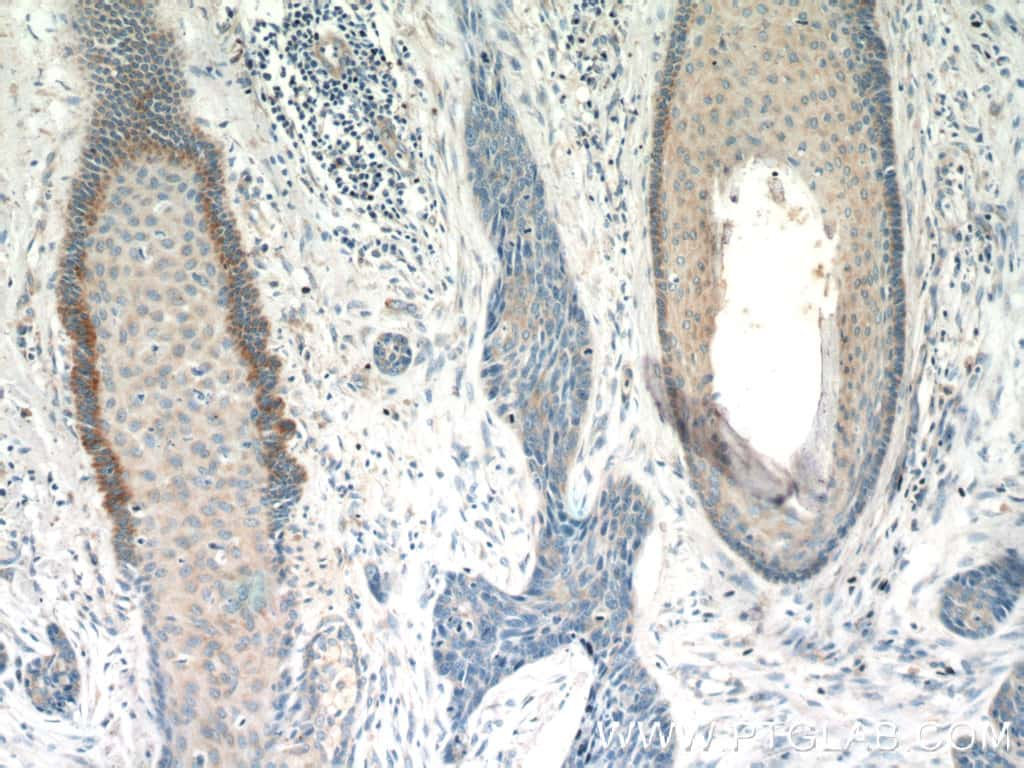 FGFBP1 Antibody in Immunohistochemistry (Paraffin) (IHC (P))