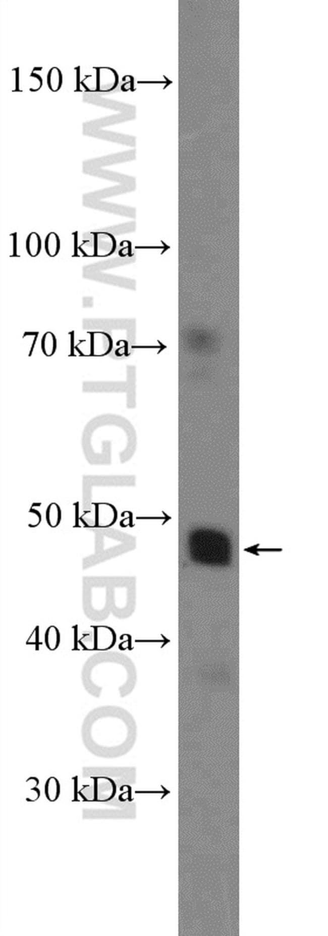 NR1H4 Antibody in Western Blot (WB)