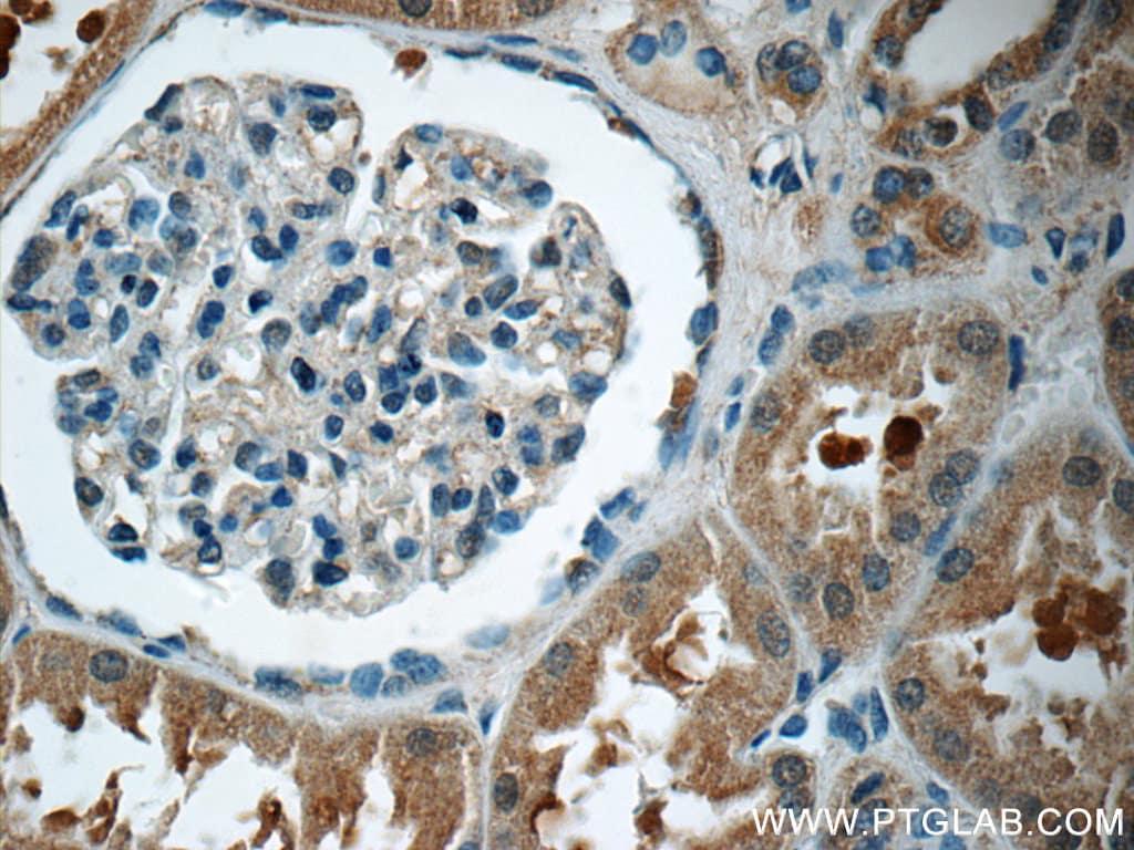 GNE Antibody in Immunohistochemistry (Paraffin) (IHC (P))