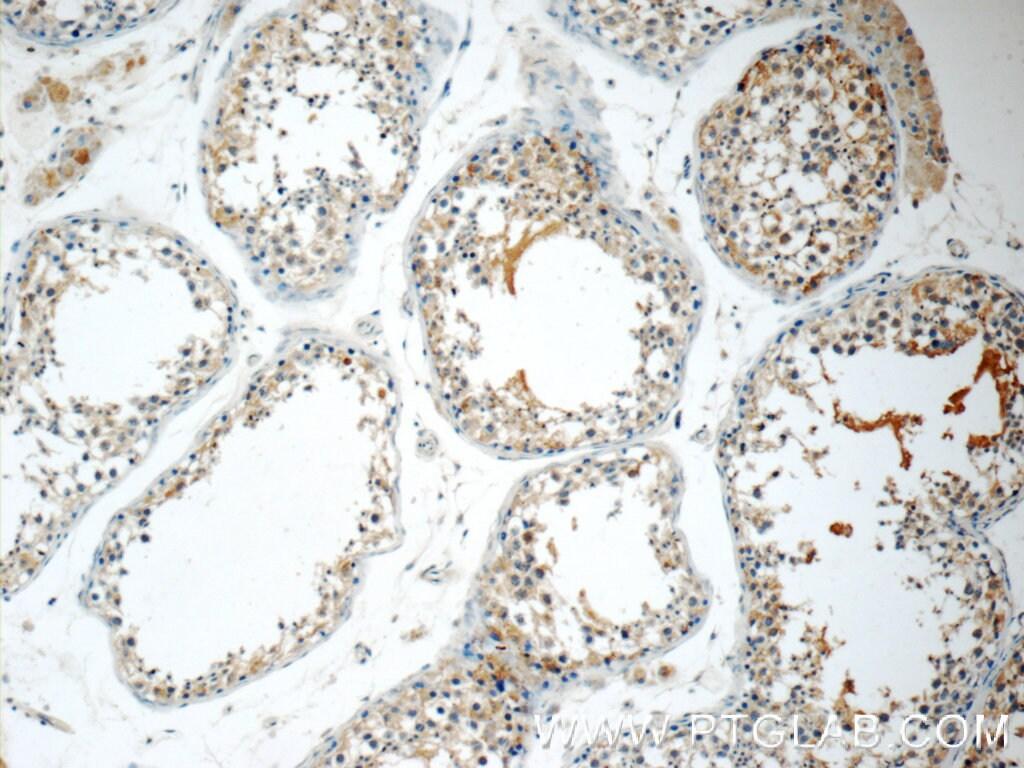 ODF3 Antibody in Immunohistochemistry (Paraffin) (IHC (P))