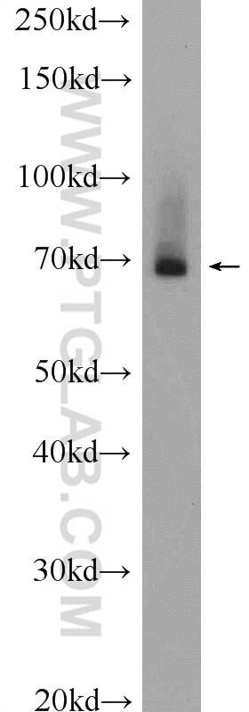 BTNL2 Antibody in Western Blot (WB)
