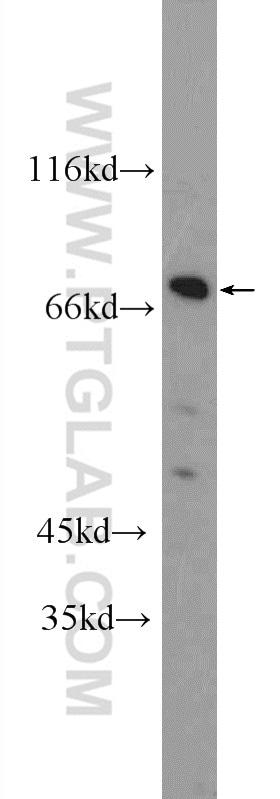 ZNF326 Antibody in Western Blot (WB)