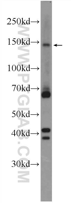 ZBTB11 Antibody in Western Blot (WB)
