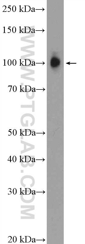 ZNF483 Antibody in Western Blot (WB)