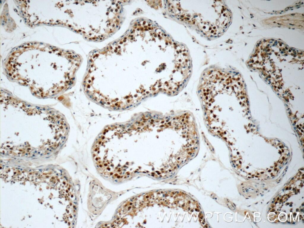 ZNF571 Antibody in Immunohistochemistry (Paraffin) (IHC (P))
