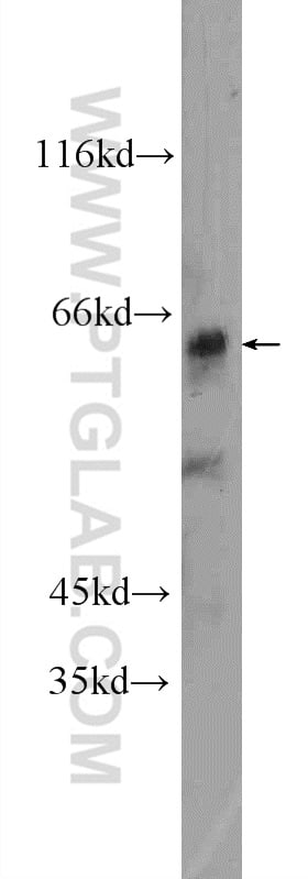 ZNF571 Antibody in Western Blot (WB)