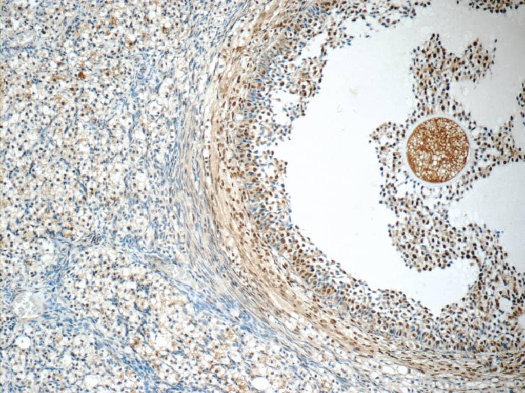 SENP1 Antibody in Immunohistochemistry (Paraffin) (IHC (P))