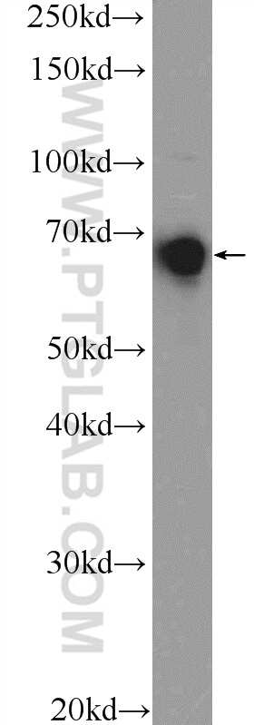 SENP1 Antibody in Western Blot (WB)