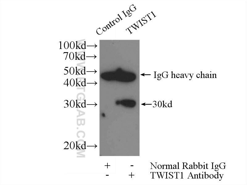 TWIST1 Antibody in Immunoprecipitation (IP)