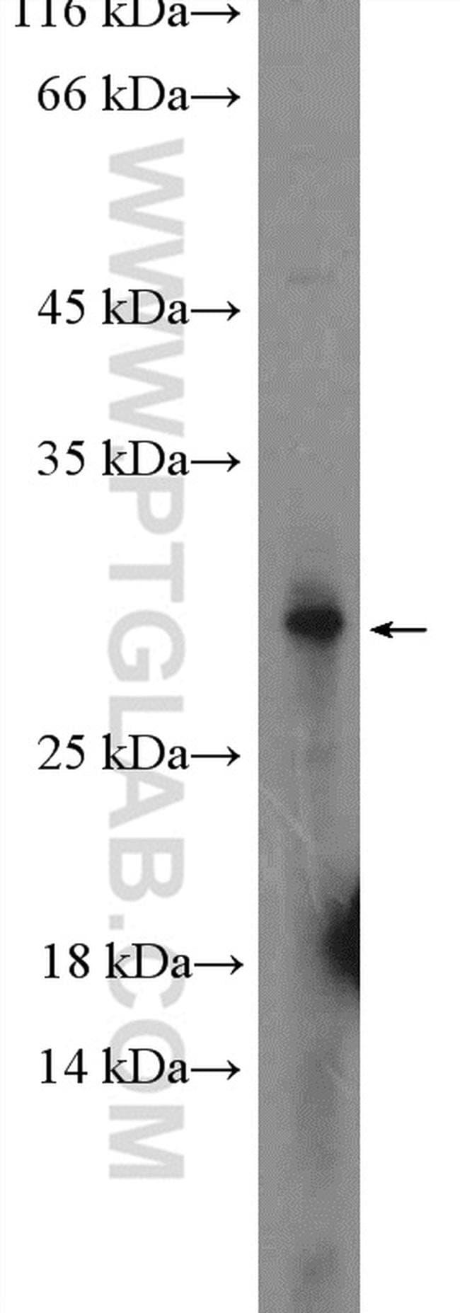 PNPLA4 Antibody in Western Blot (WB)