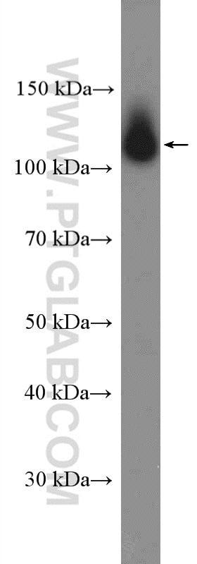 beta Amyloid (C-Terminal) Antibody in Western Blot (WB)