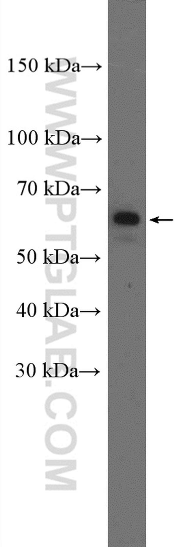 YTHDF3 Antibody in Western Blot (WB)