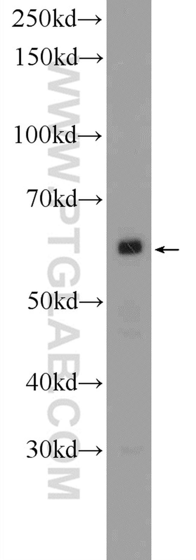 PNLDC1 Antibody in Western Blot (WB)