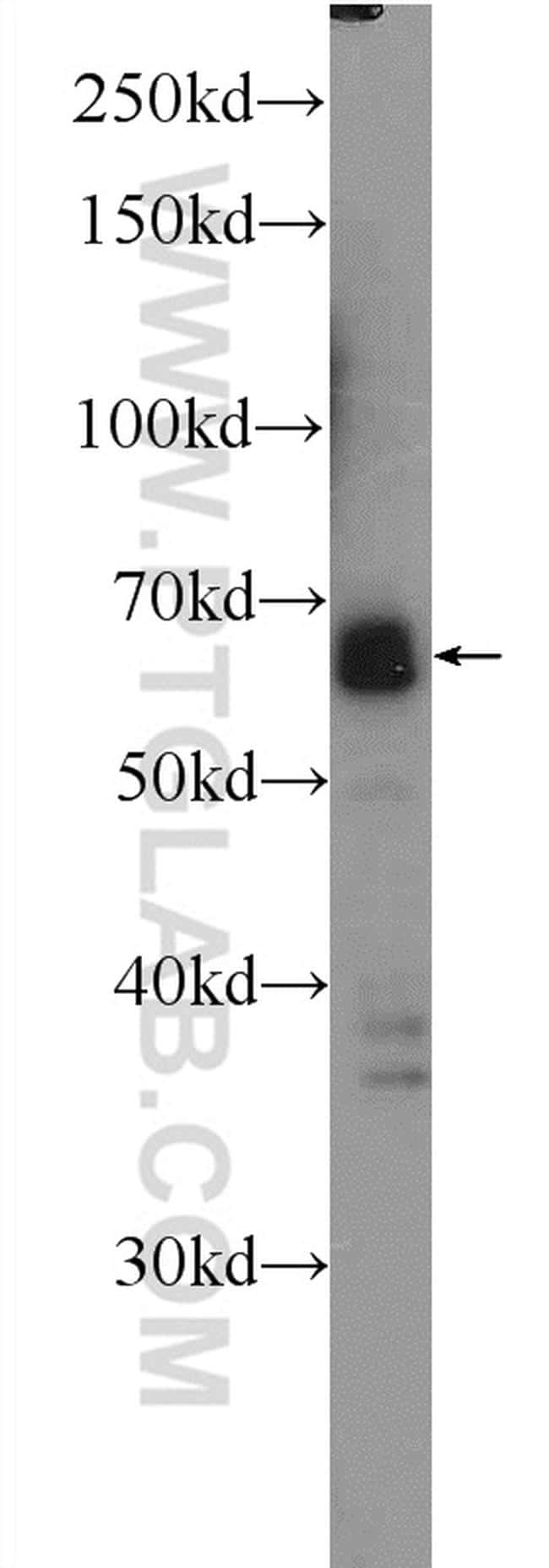 SUPT7L Antibody in Western Blot (WB)